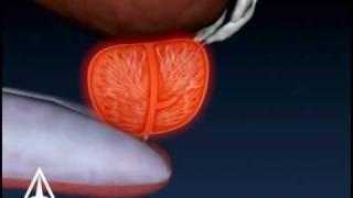 La Biopsia de próstata - Médicas en 3D de Animación