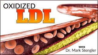 What is Oxidized LDL?