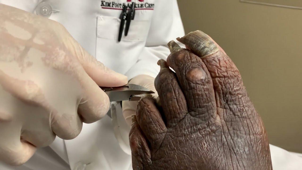 PANDEMIC toenail CUT! | REALLY LONG nail cutting | Dr. Kim