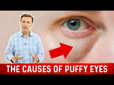 What Really Causes Puffy Eyes and Bags.