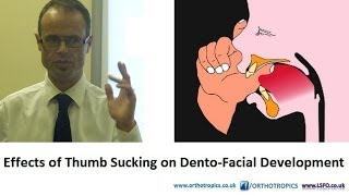Effects of Thumb Sucking on Dento-Facial Development by Dr Mike Mew