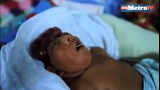 Bayi lahir tanpa tempurung kepala
