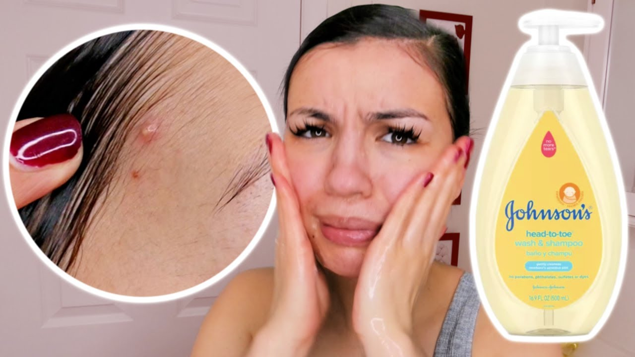 I WASHED MY HAIR WITH BABY SOAP   YouTube