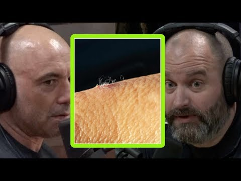 Joe Rogan On The Morgellons And Lyme Disease Connection