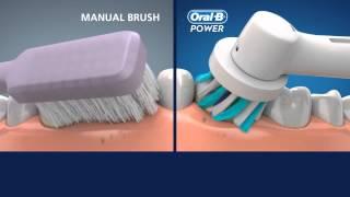 Oral-B CrossAction vs manual toothbrush