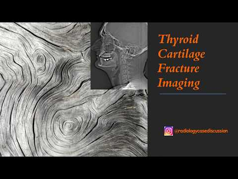 24 Ct Imaging Of Thyroid Cartilage Fracture Youtube