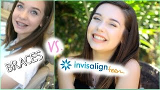 Braces vs. Invisalign Teen: My Switch! Thumbnail