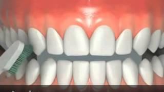 implant diş protezlerine nasıl bakım yapılır? Diş Hekimi Cansın Özgür anlatıyor...