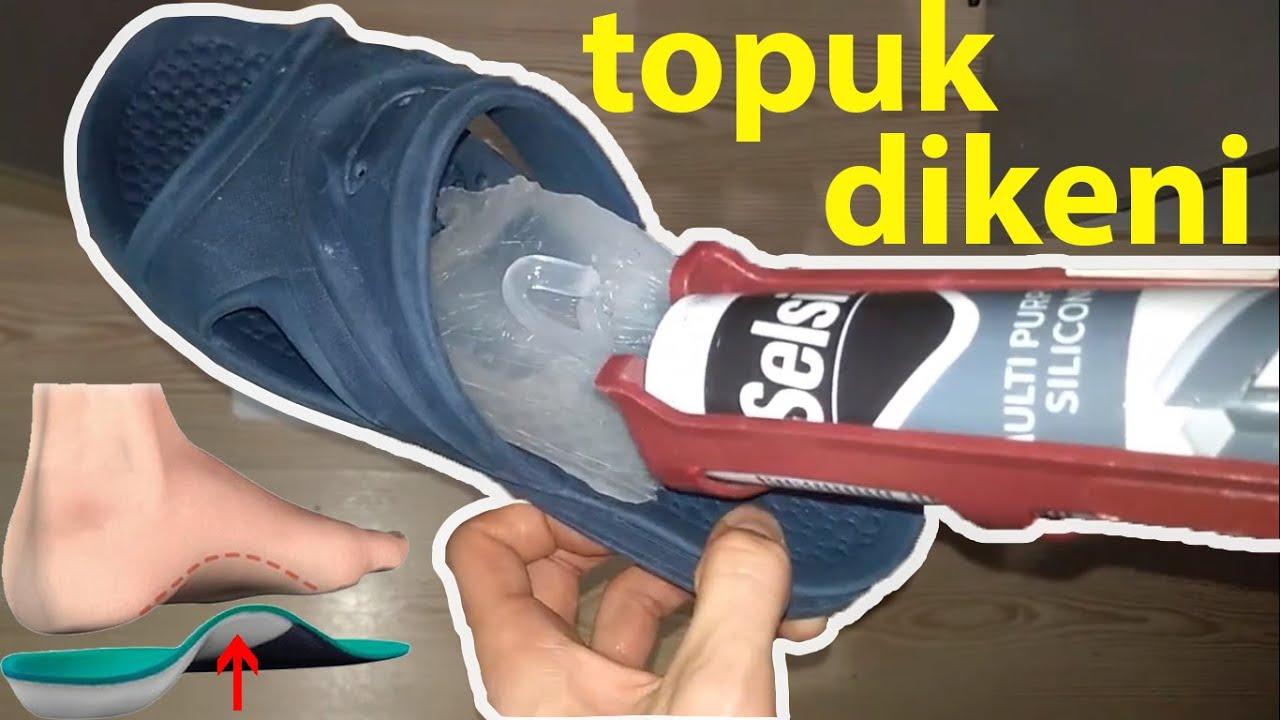 Download TOPUK DİKENİ için KİŞİYE ÖZEL TABANLIK yapımı (İnsoles for Plantar Fasciitis)