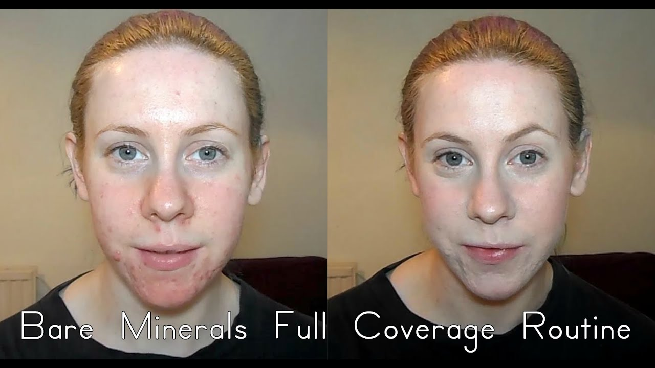 bare minerals and rosacea