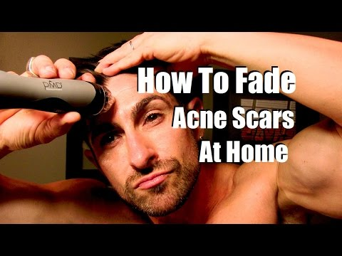 How To Fade Acne Scars | Reduce Breakouts | Even Skin Tone At Home |
