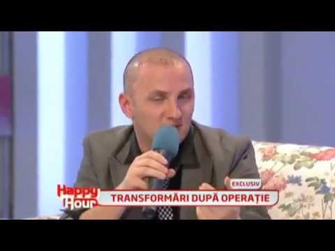 Mihai Traistariu - implant de par ( partea a III-a din 3 ) - la 6 zile dupa operatie ...