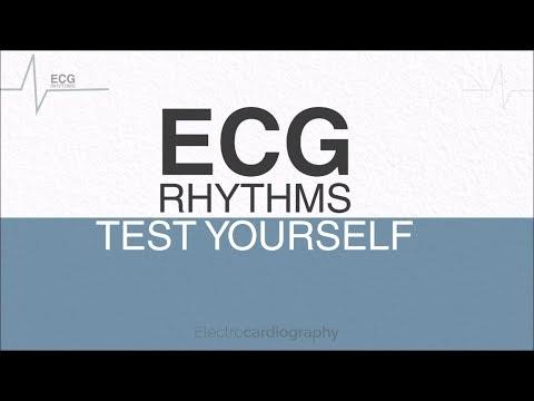 ECG Rhythms | Test Yourself