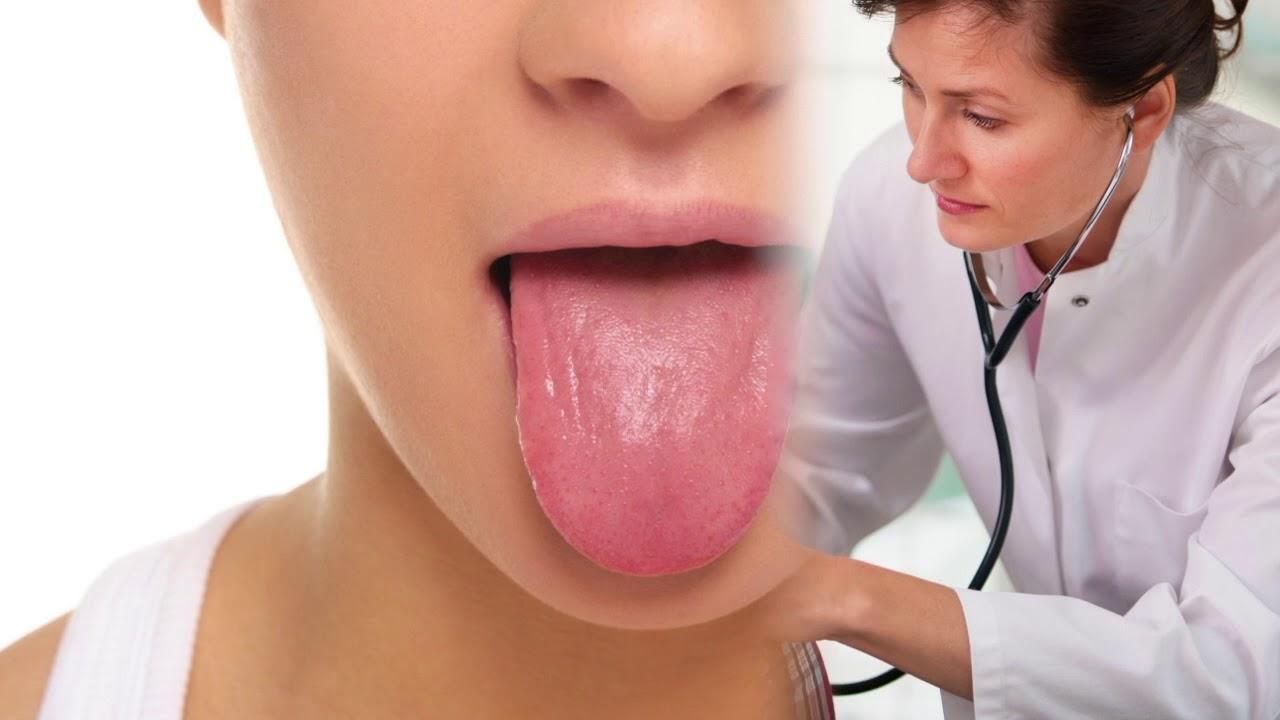 urea alta en sangre dieta