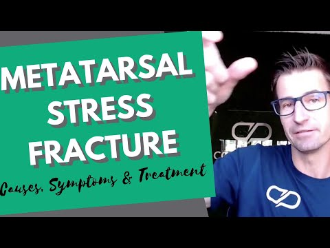 Metatarsal Stress Fracture: The Causes, Symptoms & Treatment In Runners