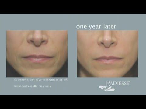 Radiesse Dermal Filler | New Radiance Cosmetic Center of