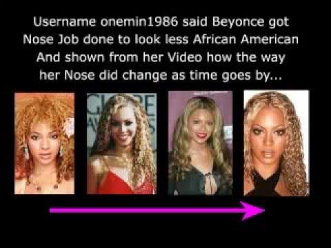 Beyonce plastic surgery - the Truth