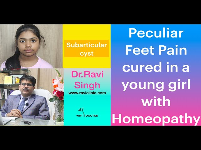 Peculiar Feet Pain cured in a young girl with Homeopathy- Dr.Ravi Singh