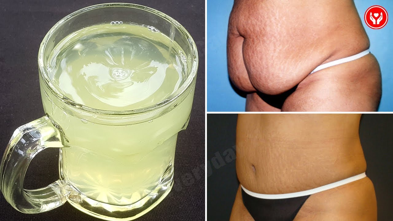 How to Lose Belly Fat Fast – Natural Remedies For Losing Excess Belly