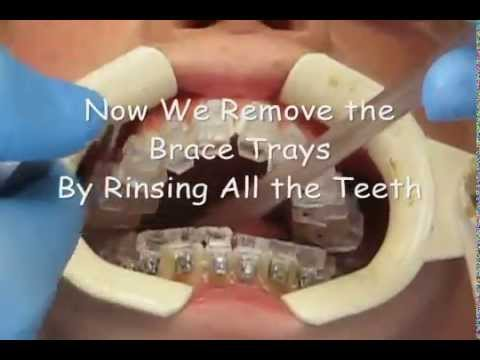 How we put on Insignia Braces