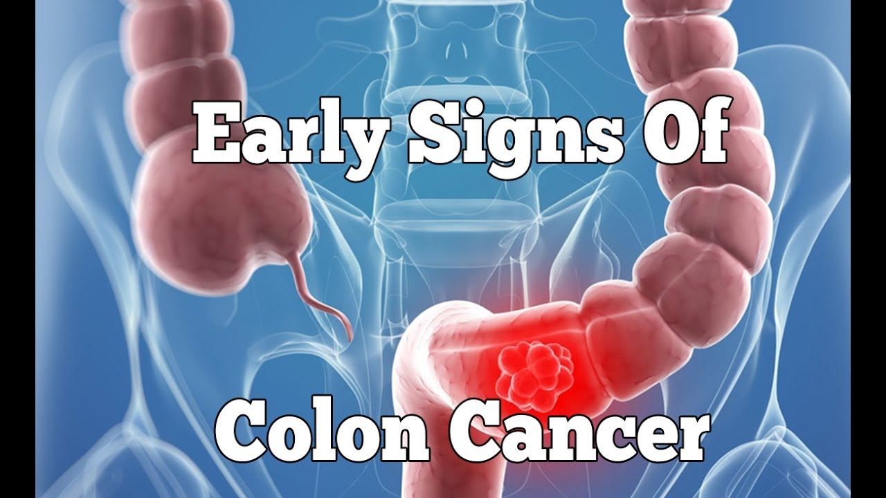 Colon cancer symptoms that you shouldn't ignore