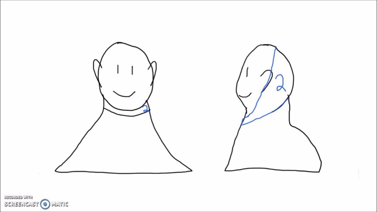 Anatomy How To Draw The Dermatomes Of The Arm Head And Neck