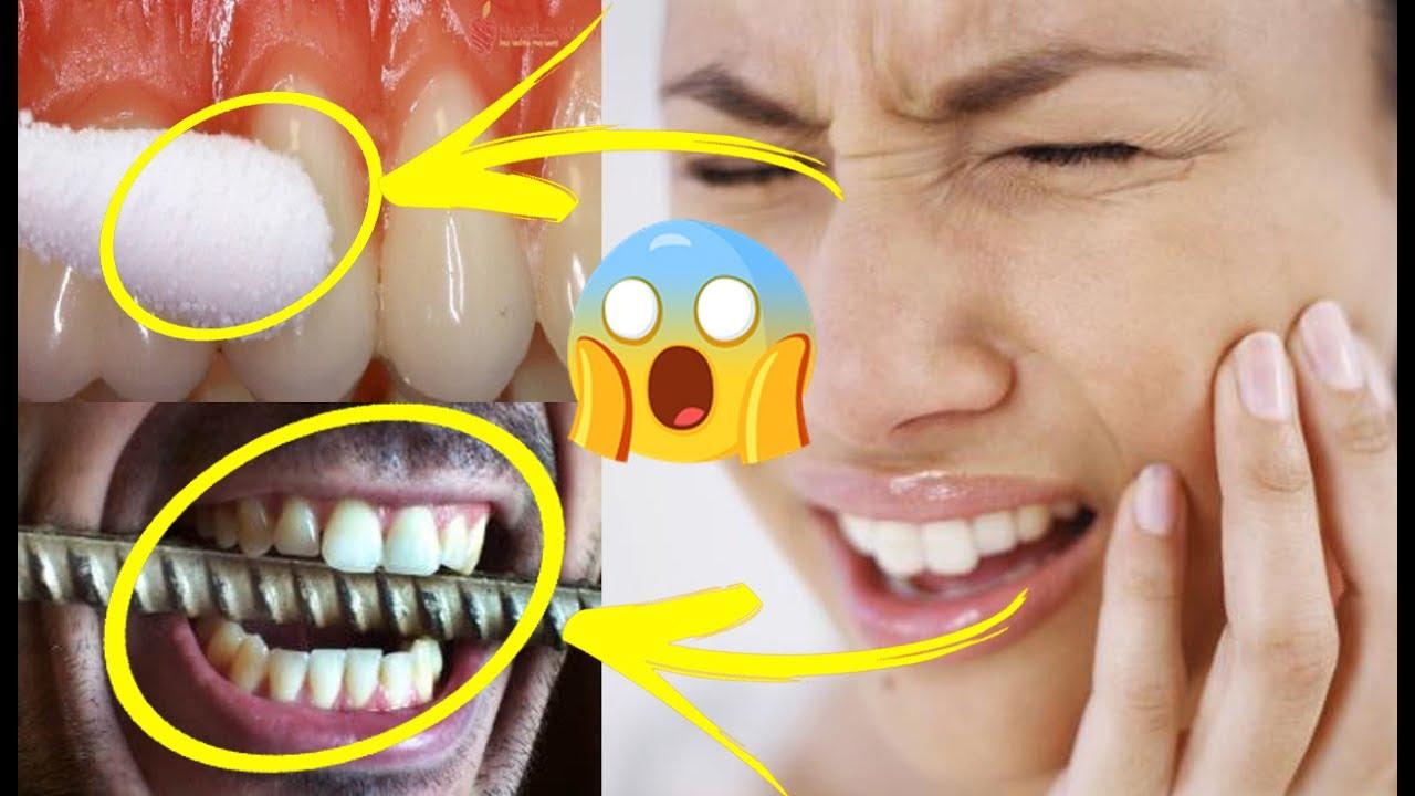 اقوى وصفة في العالم لايقاف الم الضرس و الم الاسنان والله يا جماعة في 5 ثواني يزول الالم نهائيا مجربة Youtube