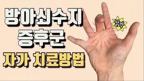 방아쇠수지증후군 수술없이 치료 하는 방법(trigger finger)