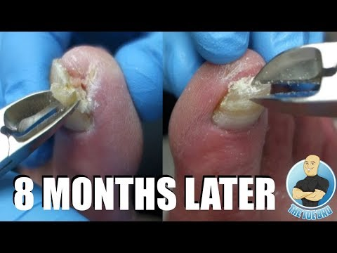 patient-of-my-most-viewed-video-returns!!!-ingrown-toenail-treatment