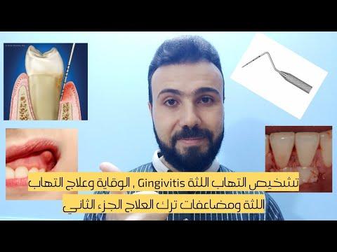 تشخيص التهاب اللثة Gingivitis , الوقاية وعلاج التهاب اللثة ومضاعفات ترك العلاج الجزء الثاني