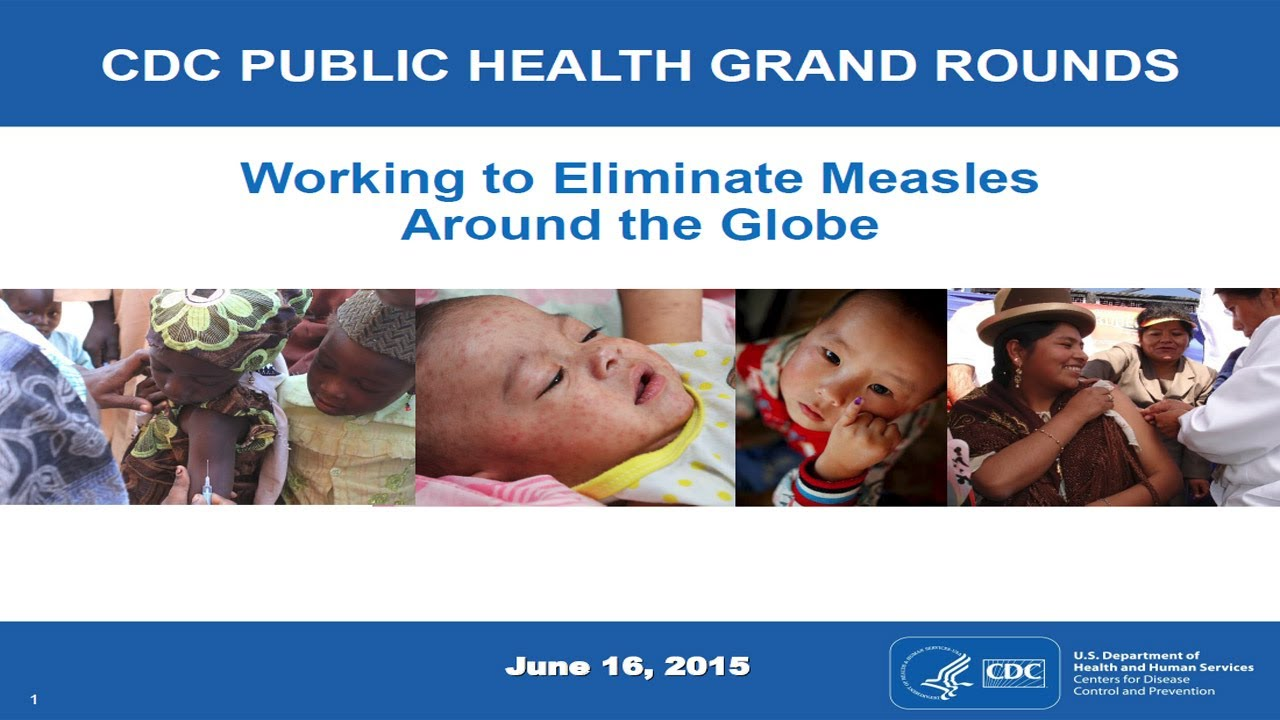 Measles cases are on track for their highest annual total since the disease was 'eliminated'