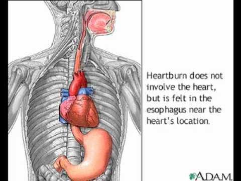 How does Heartburn / Acid Re flux happen?