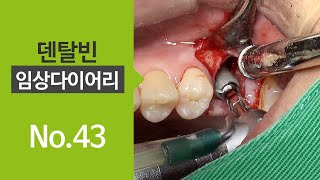 Teared fixture removal with trephine bar and simultaneous implant placement [#Dentalbean]