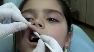 метод проведения инфильтационной анестезии у детей