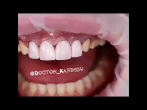 Винир - Стоматологическая клиника Винир