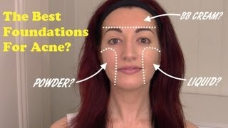 ► Best Foundations To Cover Acne, Scarring & Redness! | Oily/Acne Prone Skin Care 2013 Thumbnail