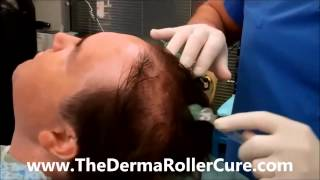 How To Use The DermaRoller Cure To Regrow Hair