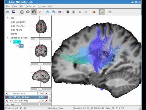 Diffusion MRI Brain Fibre Tractography: White Matter Imaging with Virtual Klingler Dissection