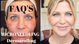Microneedling | Dermarolling Q&A | Before, During and After Pics