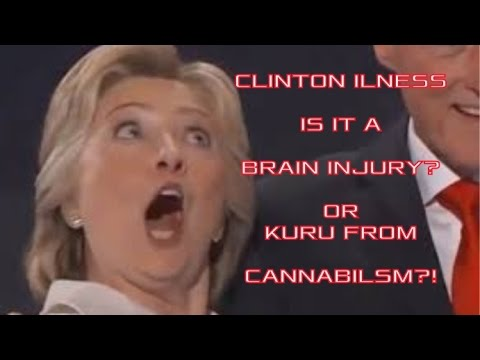 hillary clinton illness - is it a brain injury or Kuru from cannibalism