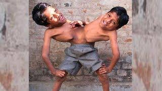 Что стало с братьями Саху Судьба сиамских близнецов