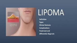 Lipoma (Definition, Types, Clinical features, Complications, Treatment and  differential diagnosis)