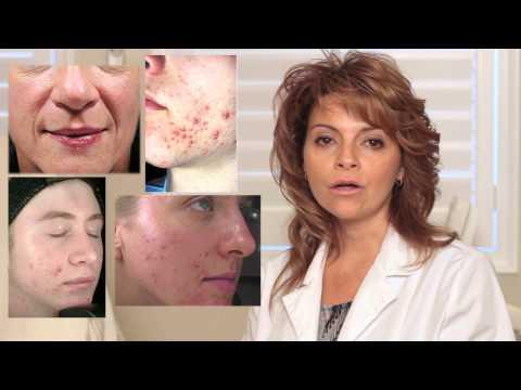 Hydra Dermabrasion Skin Resurfacing at JVAI