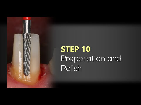 Dental Post Cementation and Core Build-Up with Cosmecore