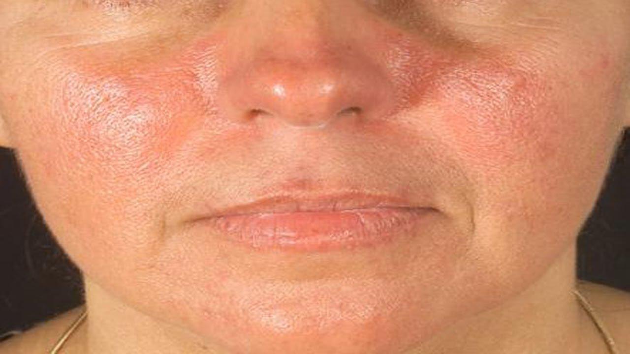 psoriasis en goutte visage