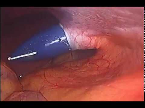 Laparoscopic Cholecystectomy in acute attack unedited