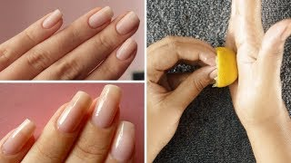 Nails Growth - Fast and Natural at home | Rabia Skincare