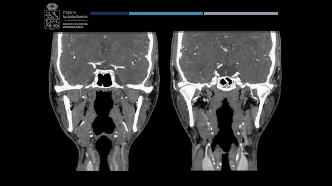 Imagenología de Cuello para Anatomía - YouTube