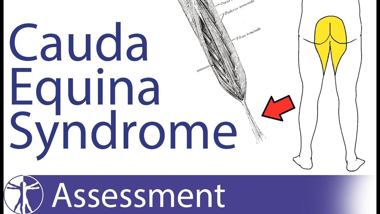 Cauda Equina Syndrome - Physiopedia