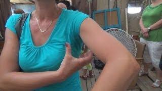 видео Воспалился лифоузел подмышкой. Причины и лечение.